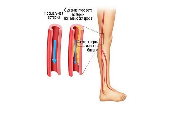 Нормальная артерия и артерия с атеросклеротической бляшкой