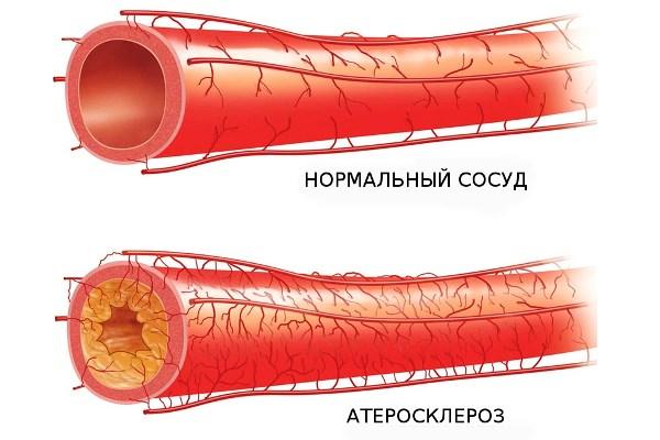 Здоровый сосуд и сосуд с атеросклерозом