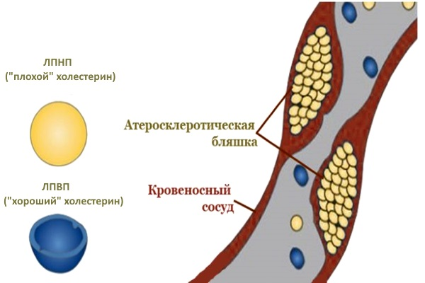 Процесс образования атеросклеротической бляшки