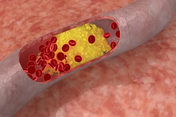 Закупорка сосудистого русла холестерином и жировыми отложениями
