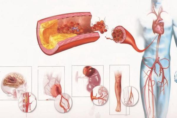 Холестерин в различных отделах сосудистого русла