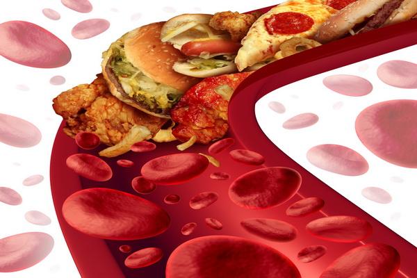 Жирная пище и ее влияние на уровень холестерина