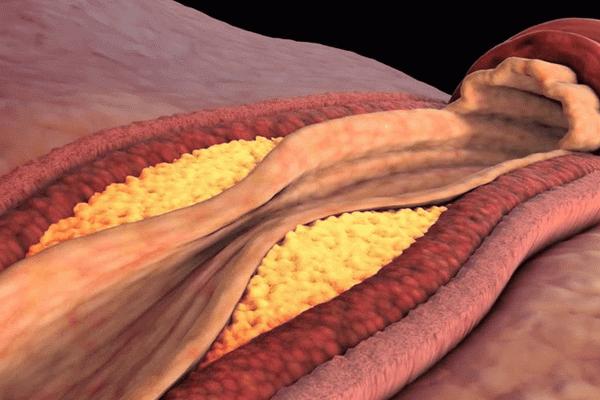 Холестерин сужает сосуд