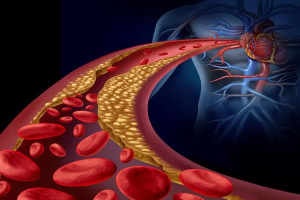 Движение эритроцитов и холестериновые бляшки