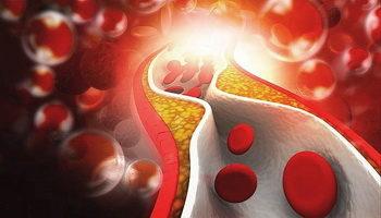 Как правильно сдавать анализ крови на холестерин: показания, подготовка и особенности проведения процедуры
