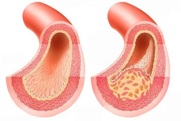 Процесс атеросклероза в сосудах