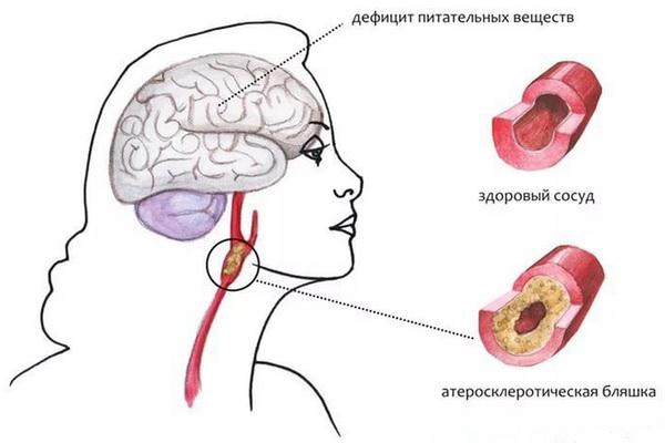 Стенозирование общей сонной артерии у женщины