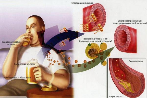 Влияние вредной еды на развитие атеросклероза