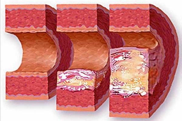 Атеросклеротические бляшки на стенках сосудов
