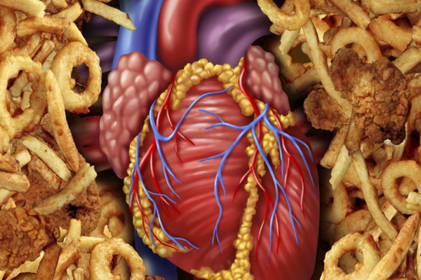 Сердце при избыточном содержании холестерина в крови
