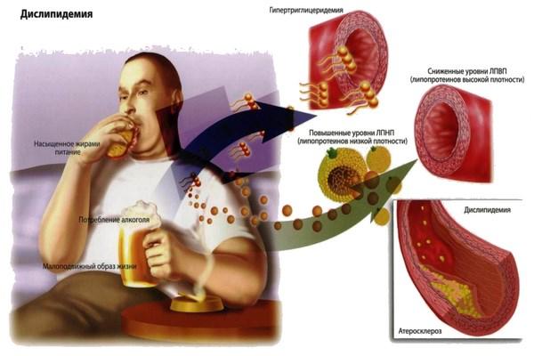 Опасность повышенного уровня холестерина у мужского населения