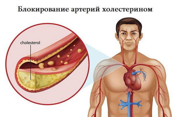 Холестерин в дуге аорты