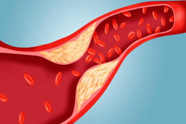 Сужение просвета сосуда холестериновыми отложениями