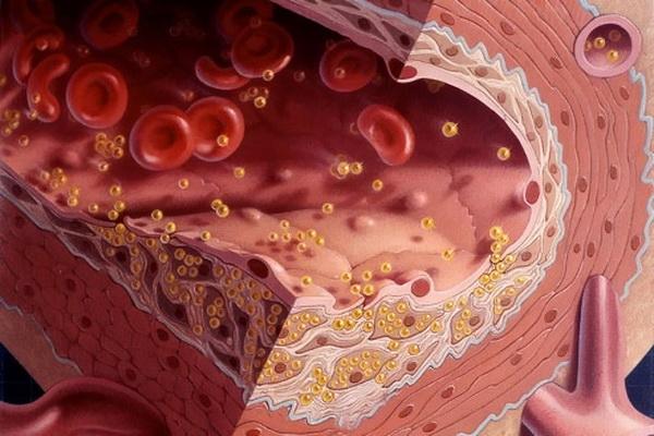 Пониженный уровень холестерина у мужчины