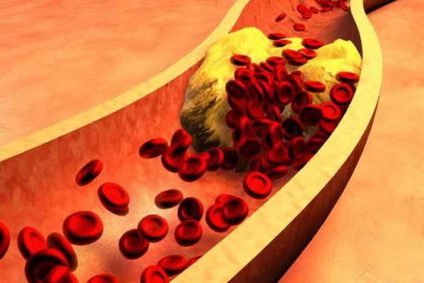 Последствия повышенного уровня холестерина в сосудах