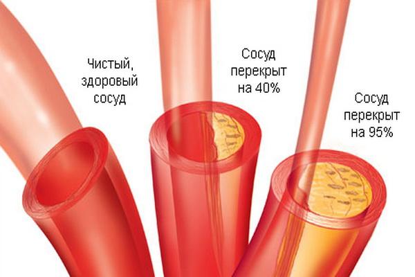 Сужение сосудов при увеличеинии уровня холестерина в крови