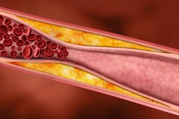 Сужение сосуда у мужчин холестериновыми бляшками