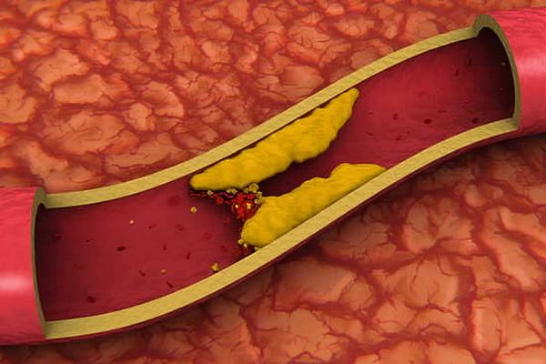 Холестерин закупоривает просвет сосуда в организме