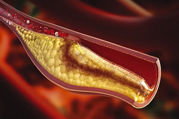 Как снизить холестерин в домашних условиях без лекарств