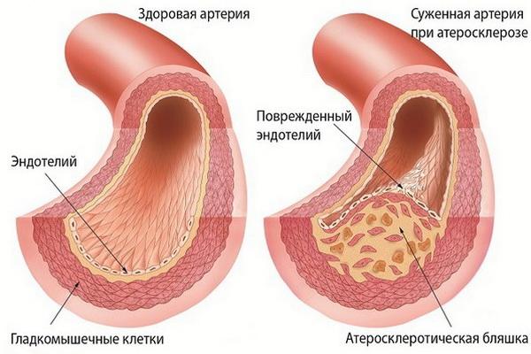 Схема здоровой и суженной артерии при астеросклерозе
