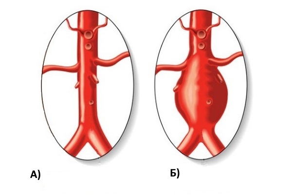 Мешковидное выпячивание аорты