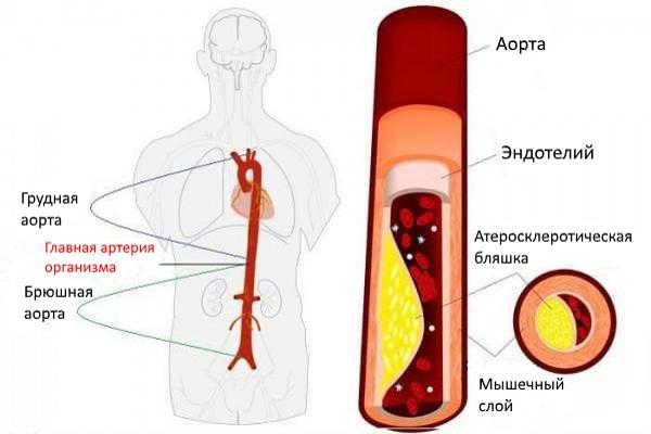 Атеросклеротическое поражение брюшной аорты