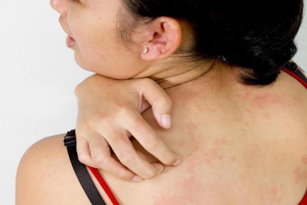 Индивидуальная непереносимость Фитостатина