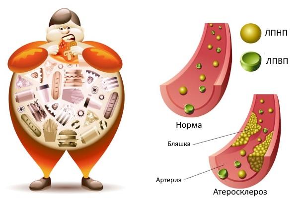 Процесс образования холестериновых бляшек
