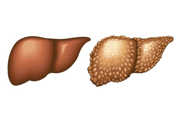 Цирроз печени – это серьезное заболевание