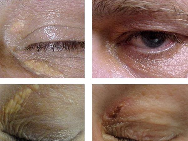 Фото до и после хирургического лечения