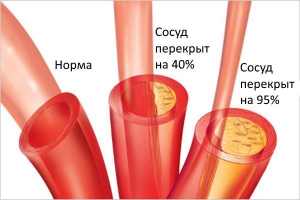 Сужение сосуда атеросклеротической бляшкой