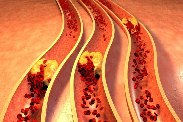 Перекрытие просвета артерий атеросклеротическими бляшками