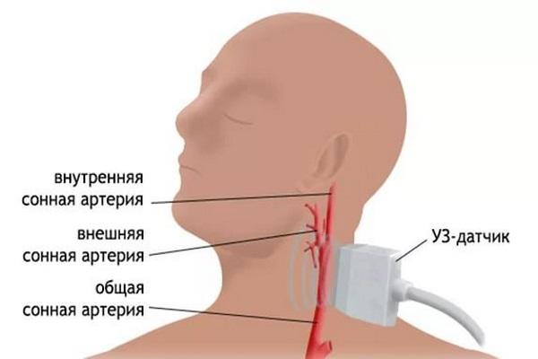 Ультразвуковая допплерография сосудов шеи