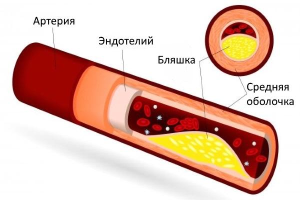 Отложение холестерина в толще стенки артерии