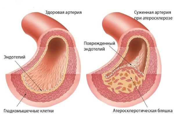 Сужение артерии холестериновой бляшкой