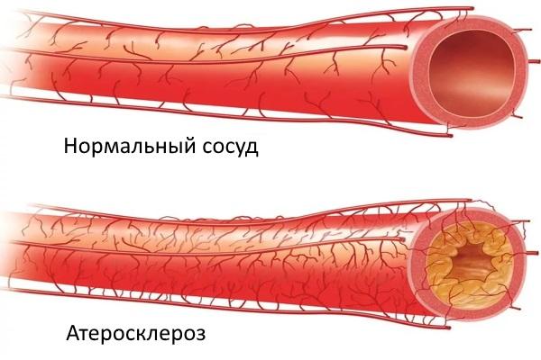 Сужение просвета артерии атеросклеротической бляшкой
