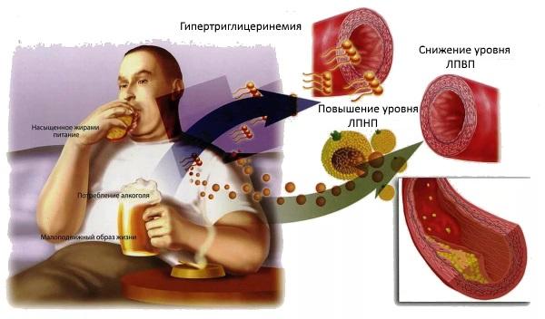 У больных атеросклерозом нередко отмечают ожирение