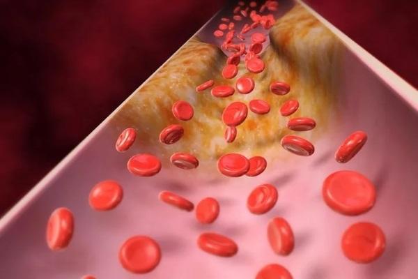 Отложение холестериновых бляшек на стенках сосудов