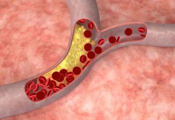 Симптомы повышенного уровня холестерина в крови у мужчин и женщин