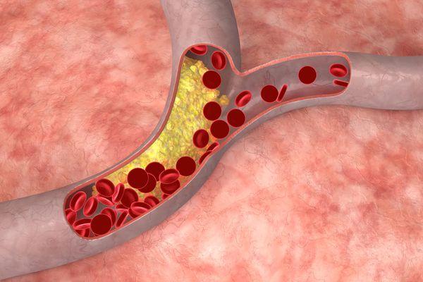 Холестерин в сосудах в крови