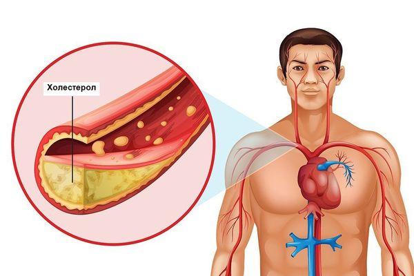 Что влияет уровень холестерола у мужчин