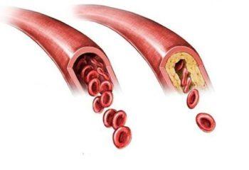 Атеросклероз как одна из ведущих причин смерти человека