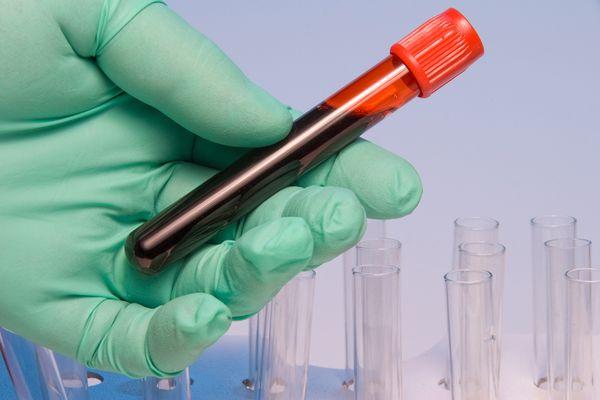 Лабораторная пробирка с кровью
