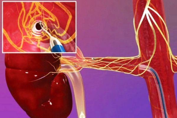 Шунтирование почечных артерий