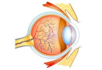 Атеросклероз в сетчатке глаза: причины возникновения, основные симптомы и подходы к лечению