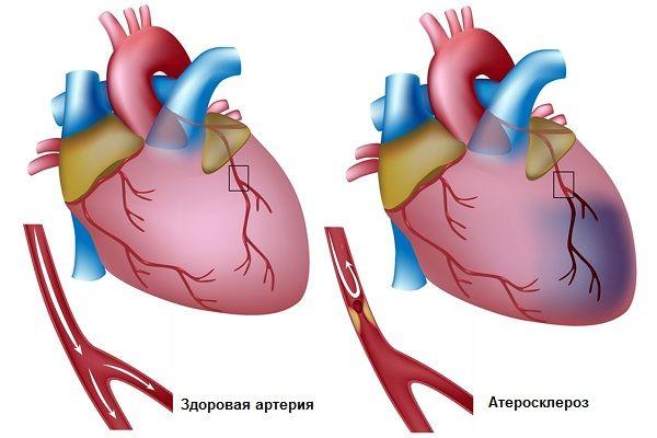 Закупорка артерии сердца