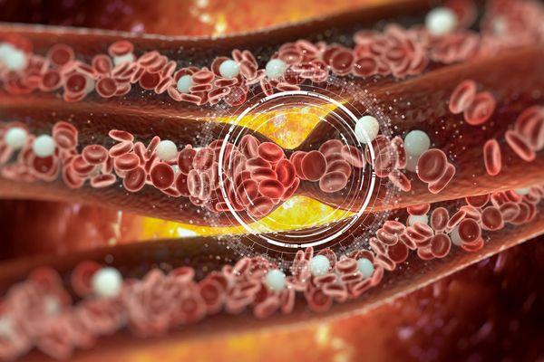 Холестерол в крови
