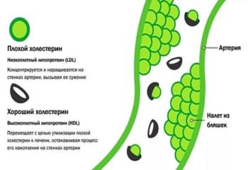 Методы коррекции дислипидемии: как повысить уровень «хорошего» холестерина и снизить «плохого»