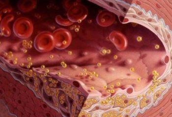 ЛПВП – полезная фракция холестерина