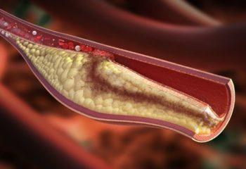 Народная медицина как альтернативный вариант снижения повышенного холестерина